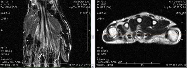 МРТ кисти: когда назначается?