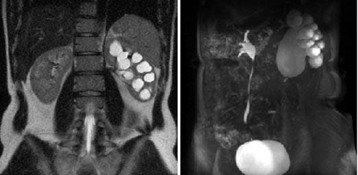 МР-урография | Клиника Эксперт