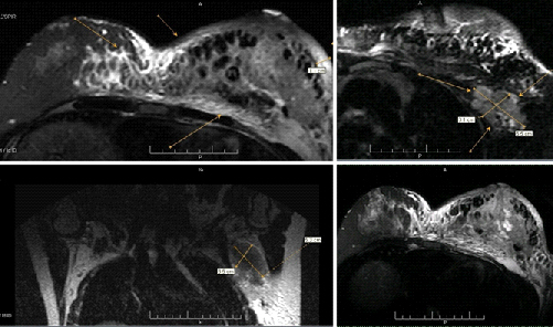 инфильтративно протоковый рак молочной железы