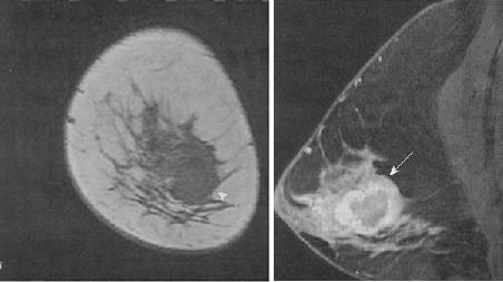 Магнитно-резонансная томография в выявлении заболеваний молочных желез