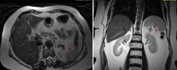 МРТ-диагностика заболеваний селезенки: когда поможет?