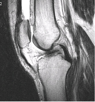 Трабекулярный отек костного мозга что это такое