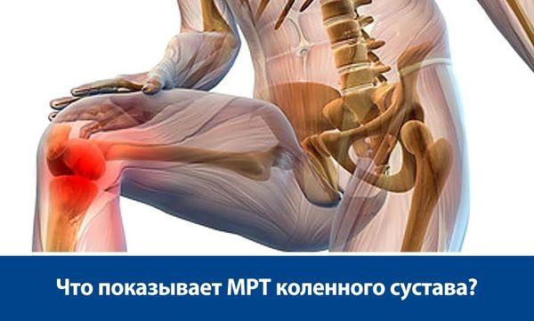 Гистиоцитома коленного сустава