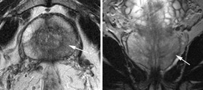 МРТ малого таза в диагностике заболеваний предстательной железы