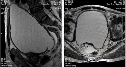МРТ малого таза в диагностике заболеваний мочевого пузыря