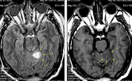 МРТ в диагностике нарушений мозгового кровообращения