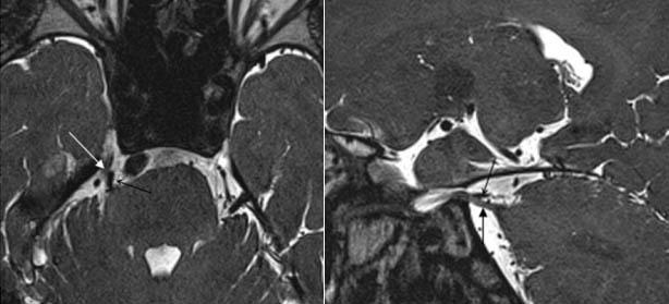 МРТ при нейроваскулярном конфликте