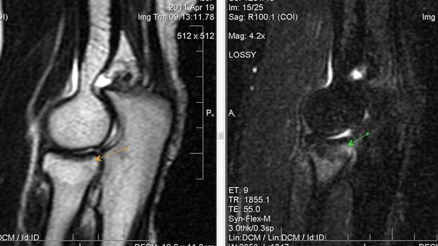 Синовит локтевого сустава фото во время беременности болит колено