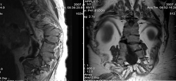 При беременности болит поясница на 15 неделе беременности форум