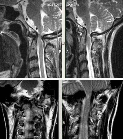 МРТ-исследование при выявлении платибазии