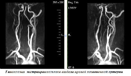 аплазия позвоночной артерии мрт