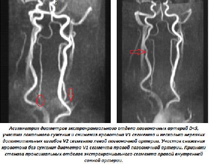 Атеросклероз нижних конечностей этиология